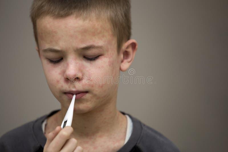 Retrato da crian?a triste doente do menino com o term?metro que tem a febre que sofre do sarampo ou da catapora com colis?es por  imagens de stock royalty free