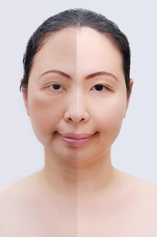 Retrato da mulher asiática antes e depois do botox imagens de stock