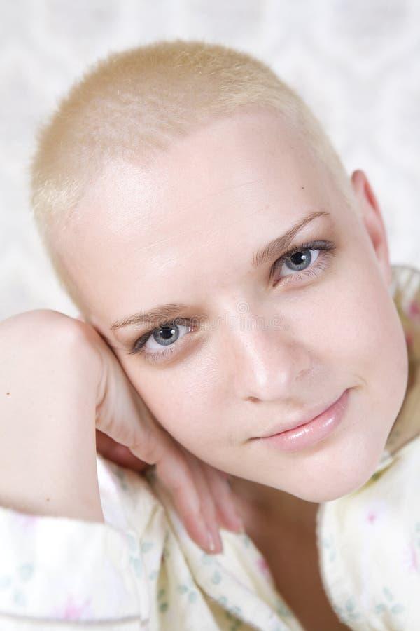 Retrato da mulher bold(realce) calva de sorriso dos jovens fotos de stock royalty free