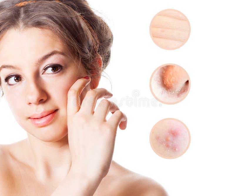 Retrato da mulher bonita nova com problema e pele limpa fotos de stock royalty free