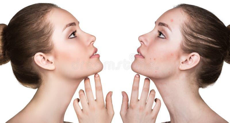 Retrato de la comparación de la piel problemática imagenes de archivo