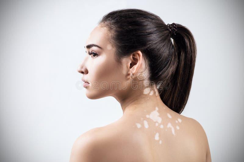 Retrato de la mujer hermosa con vitiligo imagenes de archivo