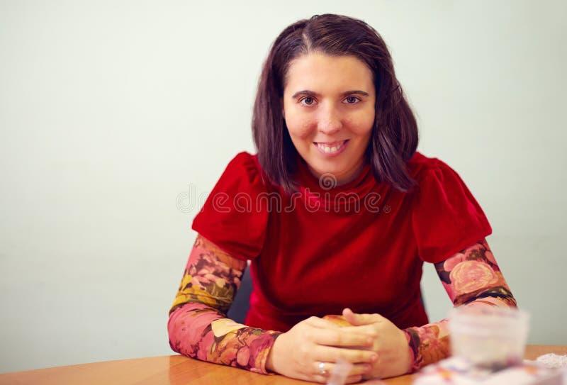 Retrato de la mujer joven con incapacidad imagen de archivo libre de regalías
