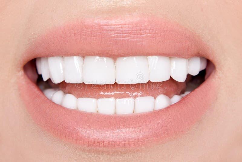 Retrato de um modelo louro bonito, sorrindo da mulher com o teetho muito branco fotografia de stock