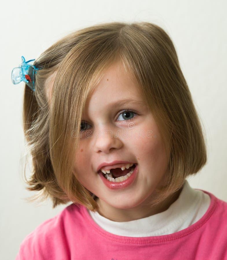 Retrato de una chica joven, sonrisa, faltando algunos dientes fotografía de archivo libre de regalías