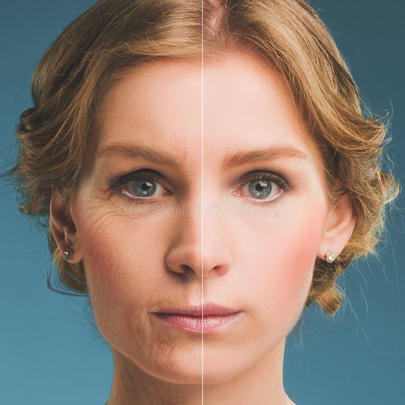 Retrato de una mujer antes y después del botox Cara joven y vieja fotos de archivo