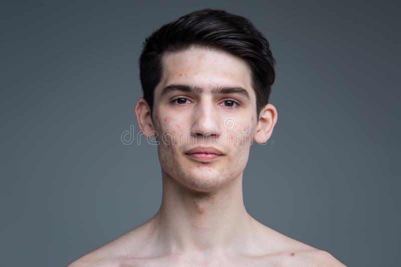 Retrato do estúdio de um homem caucasiano moreno novo no levantamento cinzento do fundo Tema da puberdade, pele do problema, acne imagens de stock royalty free