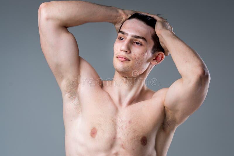 Retrato do estúdio de um homem caucasiano moreno novo no levantamento cinzento do fundo Tema da puberdade, pele do problema, acne foto de stock royalty free