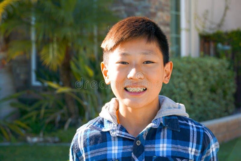 Retrato do menino asiático da criança com cintas do dente fotografia de stock