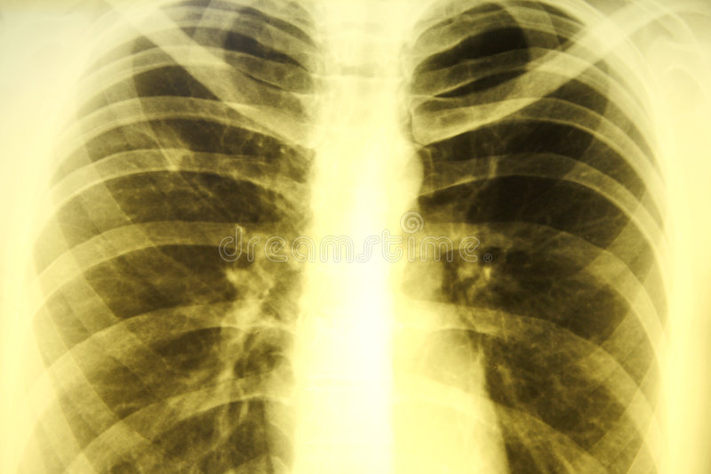 Retrato do raio X imagem de stock