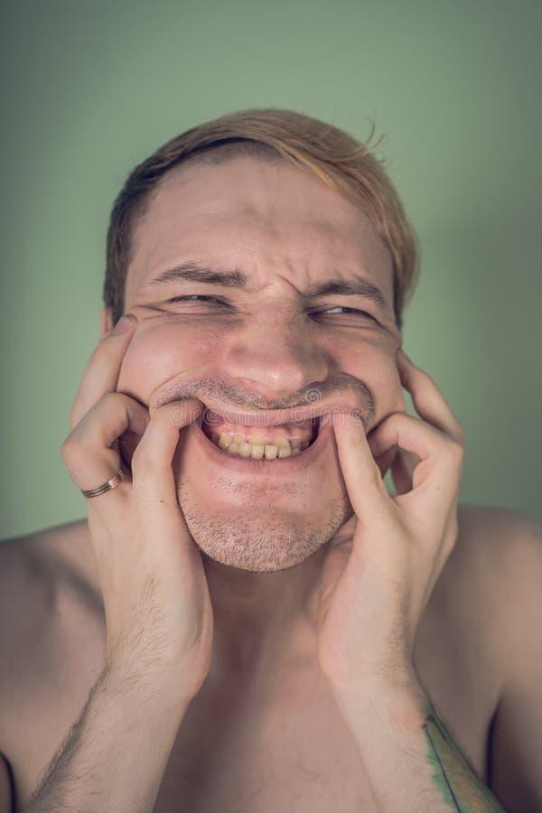 Retrato emocional de un individuo loco en primer concepto: el ataque de nervios, la enfermedad mental, los dolores de cabeza y la imagenes de archivo
