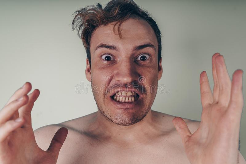 Retrato emocional de un individuo loco en primer concepto: el ataque de nervios, la enfermedad mental, los dolores de cabeza y la fotos de archivo