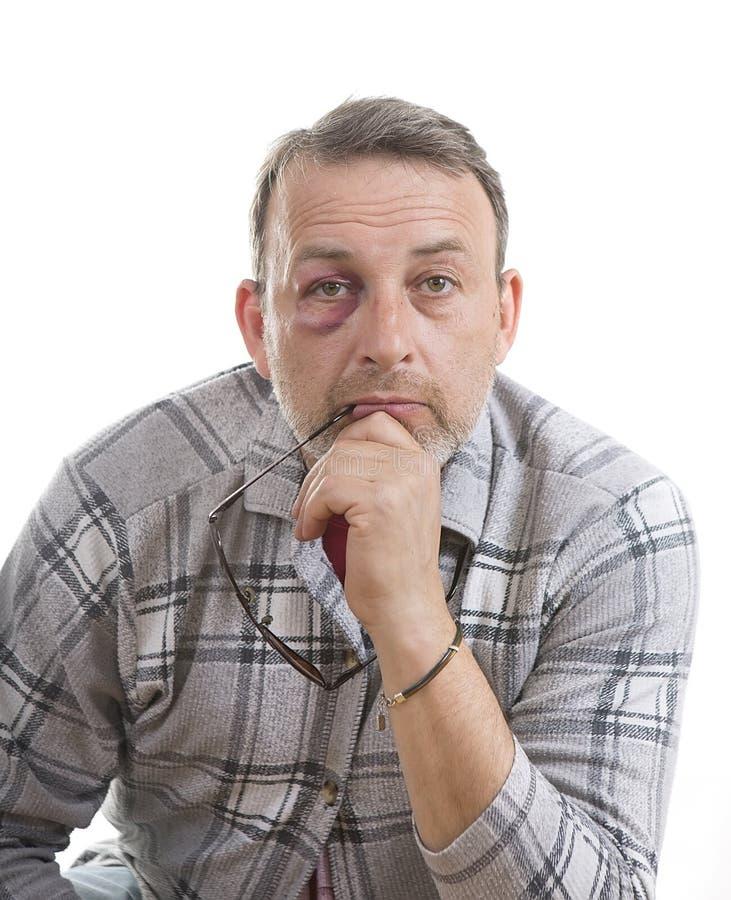 Retrato emocional masculino caucasiano de meia idade com uma equimose real fotos de stock royalty free