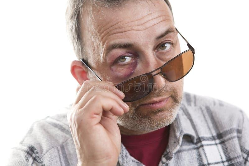 Retrato emocional masculino caucasiano de meia idade com uma equimose real fotos de stock