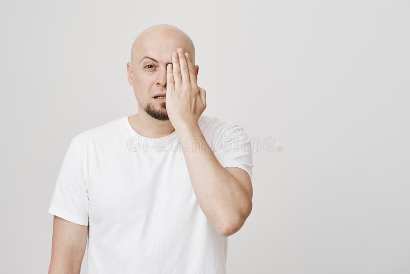Retrato interno do homem caucasiano farpado calvo focalizado e determinado que é vesgo com um olho ao cobrir a metade da cara imagens de stock