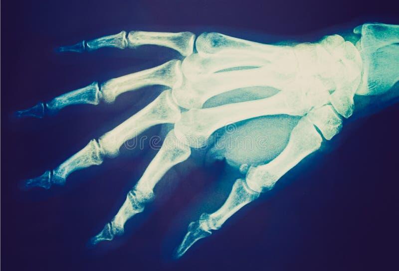 Retro- Blick Röntgenstrahl stockbilder