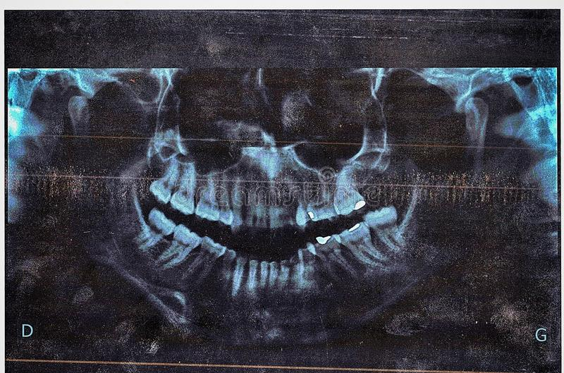 Retro Dental Xray (x-ray) Of Jaw Stock Image - Image of female ...