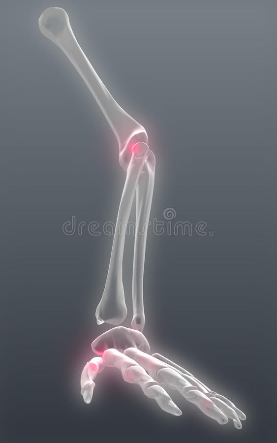 Reumatische pijn stock illustratie