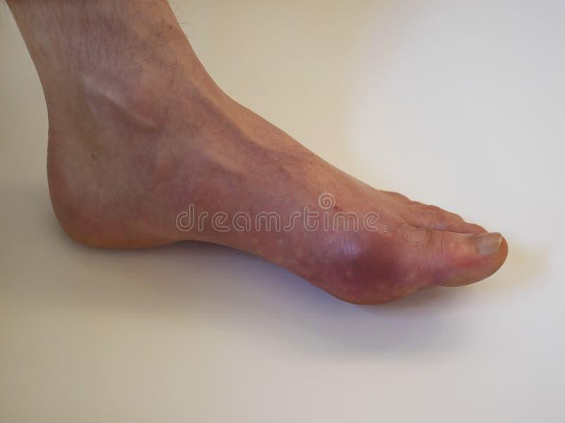Reumatism och gikt för fotsjukdom Röd benbulnad Sm?rta i foten royaltyfri bild