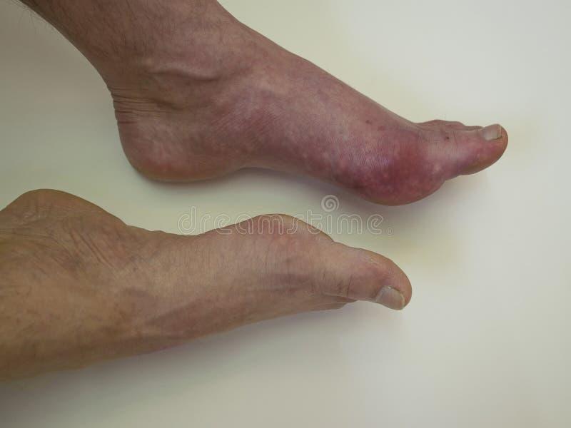 Reumatism och gikt för fotsjukdom Röd benbulnad Sm?rta i foten arkivbilder