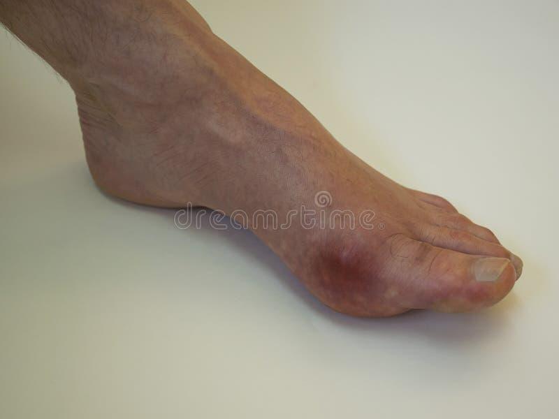 Reumatism och gikt för fotsjukdom Röd benbulnad Sm?rta i foten royaltyfri fotografi