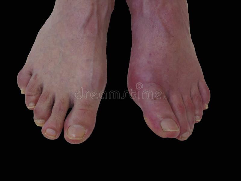 Reumatism och gikt för fotsjukdom Röd benbulnad Sm?rta i foten arkivbild
