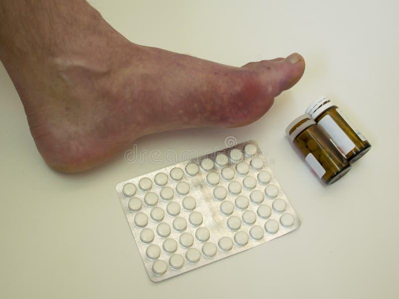 Reumatism och gikt för fotsjukdom Röd benbulnad Sm?rta i foten royaltyfri foto