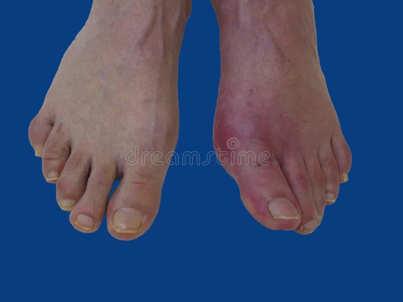 Reumatism och gikt för fotsjukdom Röd benbulnad Sm?rta i foten fotografering för bildbyråer