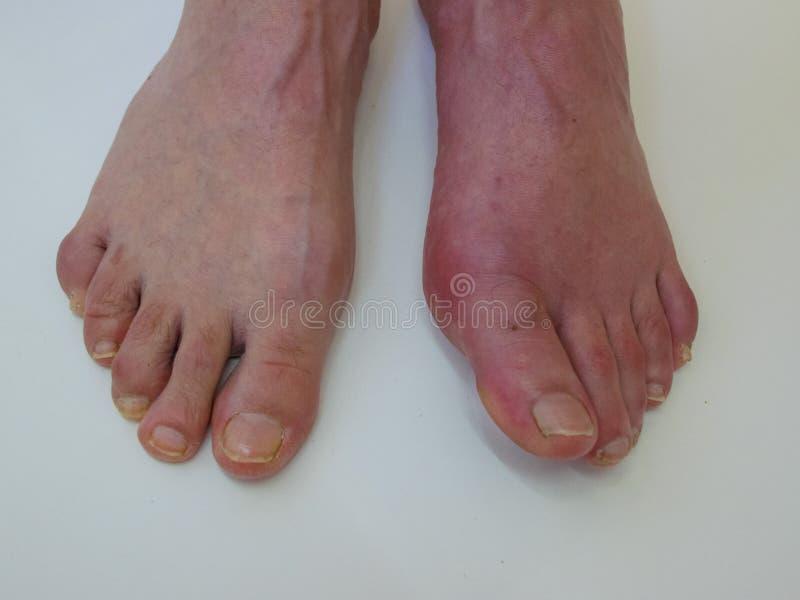 Reumatismo e gotta di malattia di piede Gonfiamento rosso della gamba Dolore nel piede immagini stock