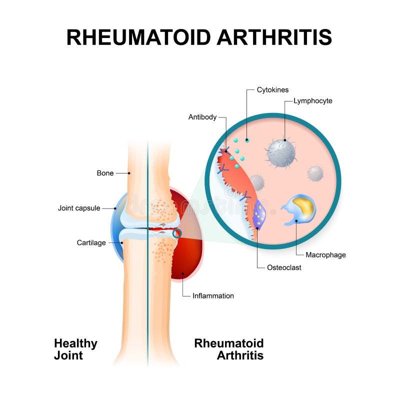 Reumatoïde Artritis normale gezamenlijk en met reumatoïde arthr vector illustratie