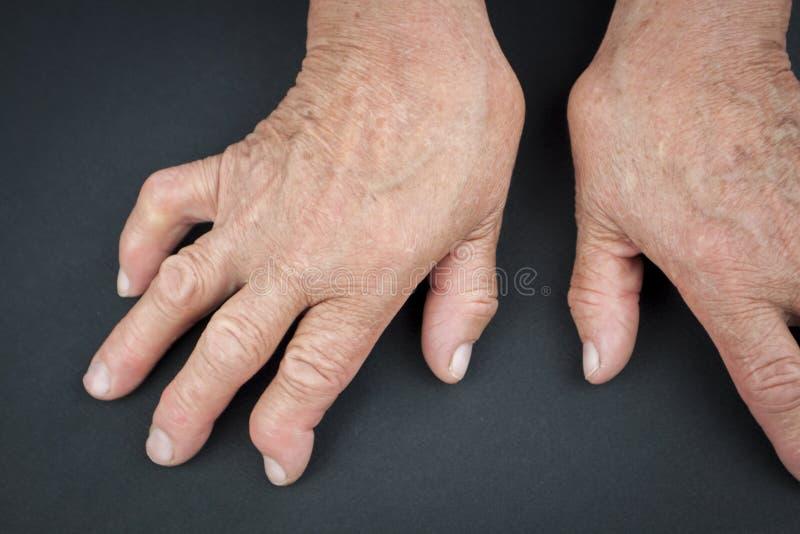 Reumatoïde Artritishanden stock fotografie