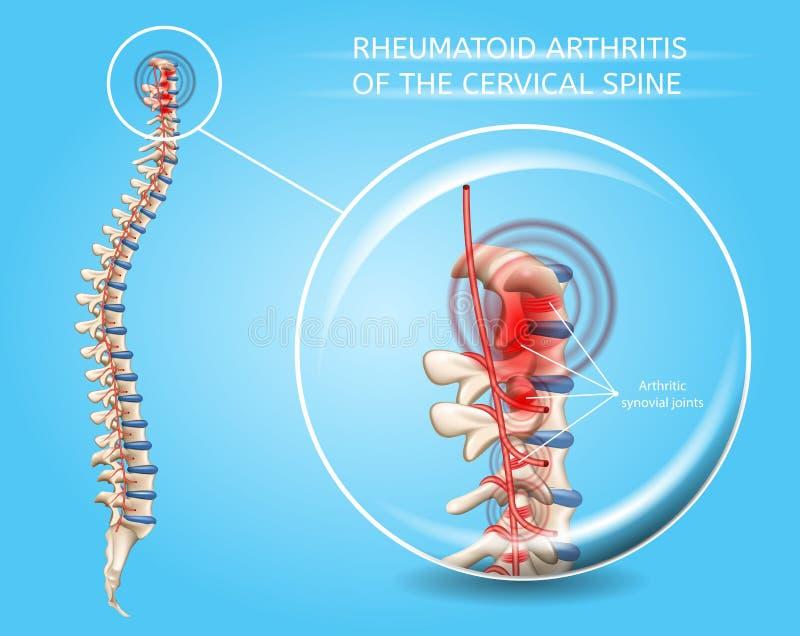 Reumatoid artrit av den cervikala inbindningsvektorn royaltyfri illustrationer