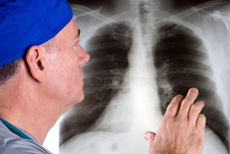 Revue de rayon X photographie stock