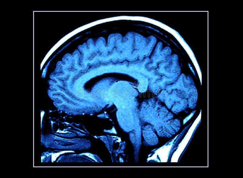 rezonans mózgu skan obrazy stock