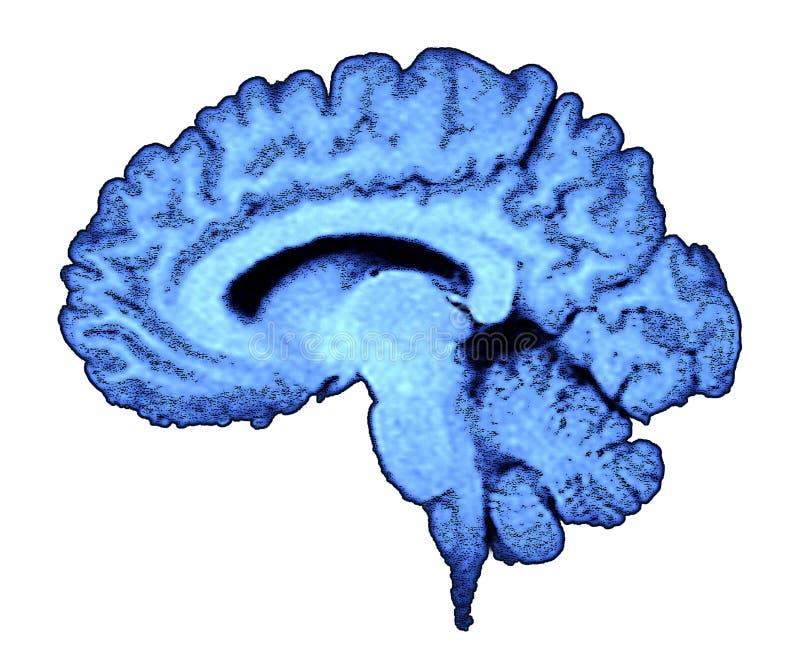 rezonans mózgu skan fotografia stock