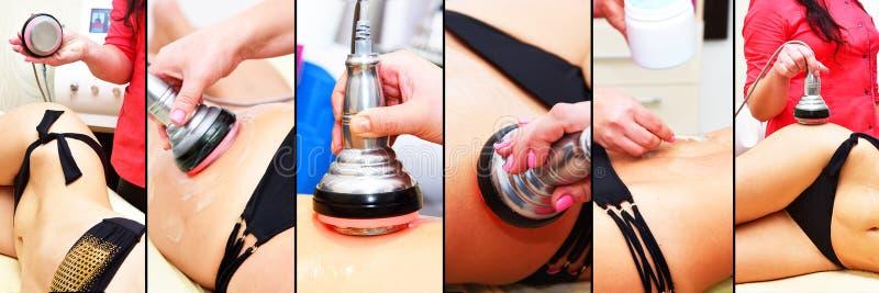 Σκλήρυνση δερμάτων RF, κοιλιά Cosmetology υλικού o Μη χειρουργικό σωμάτων Σώμα δημιουργίας κοιλότητας υπερήχου που περιγράφει tre στοκ εικόνες με δικαίωμα ελεύθερης χρήσης