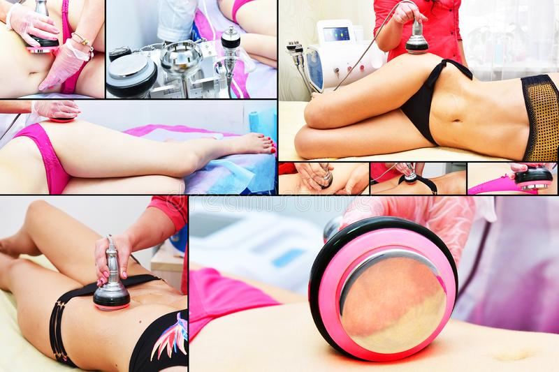 Rf skin tightening, belly. Hardware cosmetology. Body care. Non surgical body sculpting. Ultrasound cavitation body contouring tre royalty free stock images