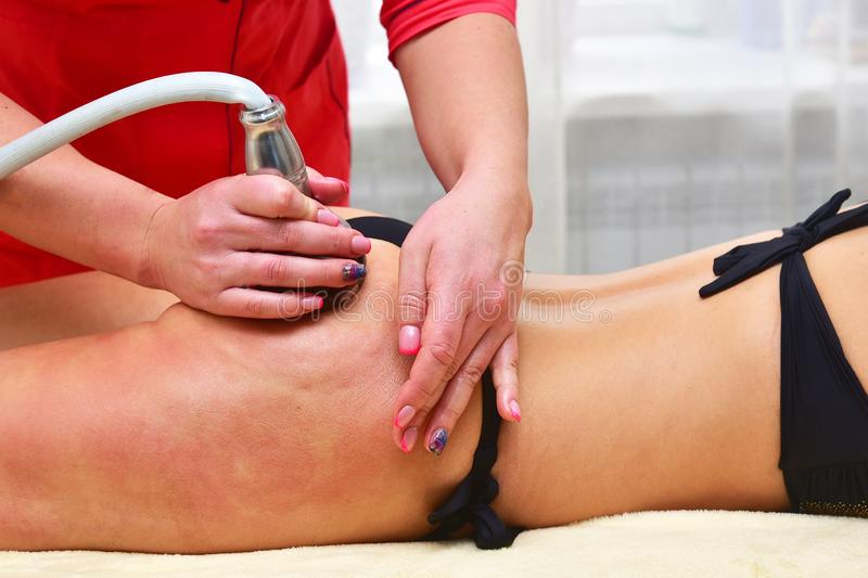 Rf skin tightening. Vacuum massage. Hardware cosmetology. Body care. Non surgical body sculpting. anti-cellulite and anti-fat ther royalty free stock image