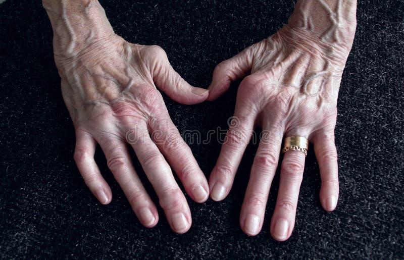 Rheumatica, de hand van de Vrouw met de handen en de vingers van de heumatoidartritis sinds veertig jaar sinds eerste diagnose stock foto
