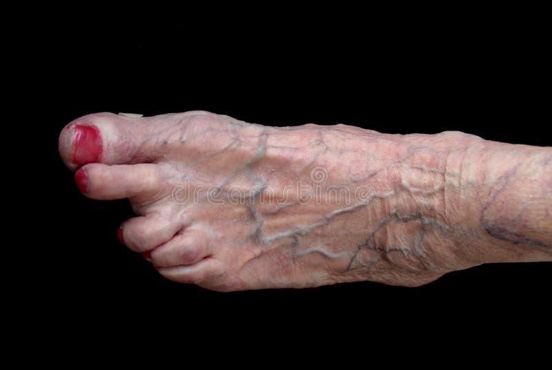 Rheumatica, der Fu? der Frauen nach mehr als vierzig Jahren seit erster Diagnose stockfotos