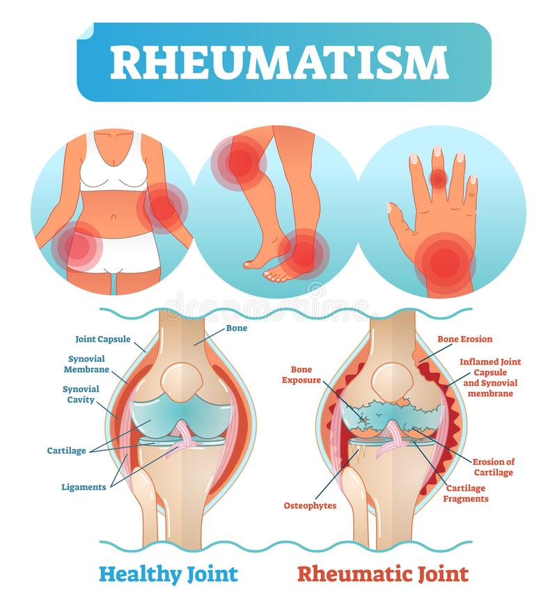 Rheumatism medical health care vector illustration poster diagram with damaged knee erosion and painful body joints. Healthy knee joint comparison to rheumatic stock illustration
