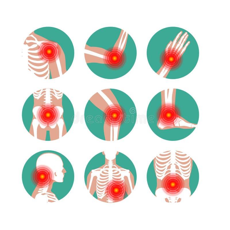 Free Rheumatism Or Rheumatic Disorder Medical Set. Arthritis Joint Pain. Rheumatology Vector Infographics Royalty Free Stock Photography - 139070157