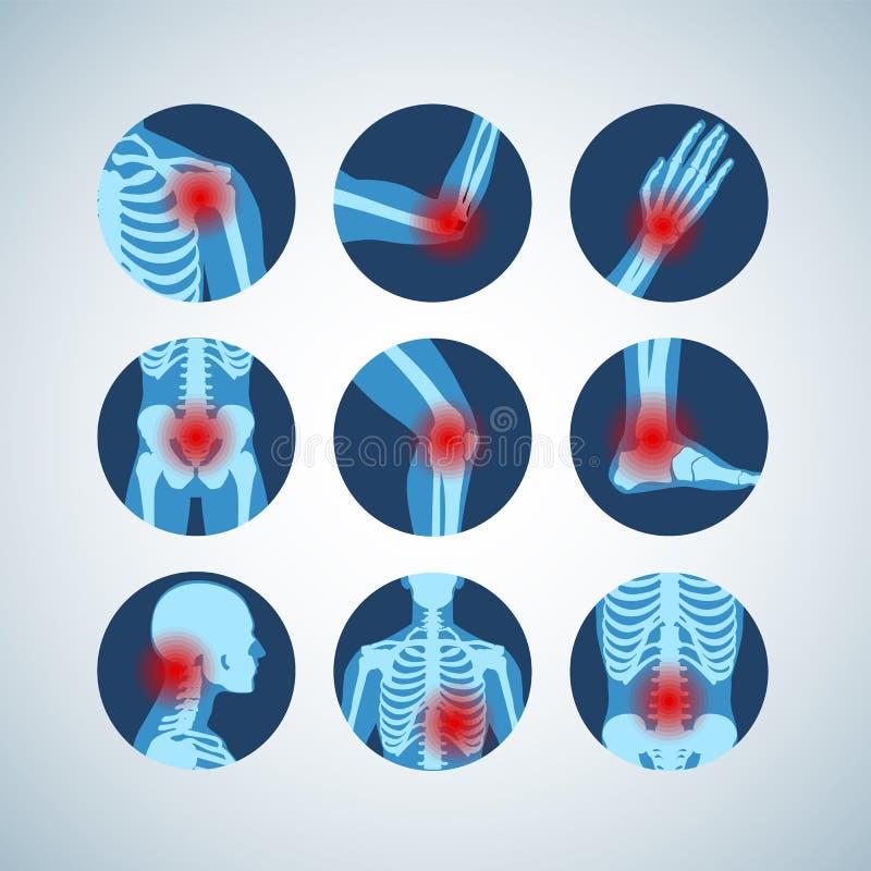 Rheumatism or rheumatic disorder medical set. Arthritis joint pain. Rheumatology vector infographics vector illustration