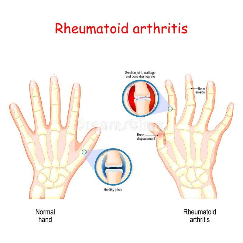 Rheumatoid αρθρίτιδα Υγιές χέρι, και χέρι με τη rheumatoid αρθρίτιδα απεικόνιση αποθεμάτων