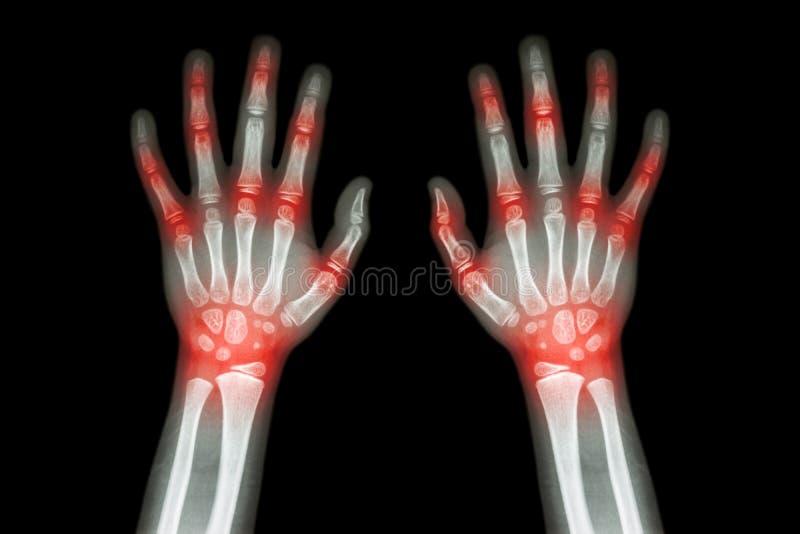 Rheumatoid αρθρίτιδα, αρθρίτιδα Gout (ακτίνα X ταινιών και τα δύο χέρια του παιδιού με την πολλαπλάσια κοινή αρθρίτιδα) (ιατρική, στοκ φωτογραφία με δικαίωμα ελεύθερης χρήσης