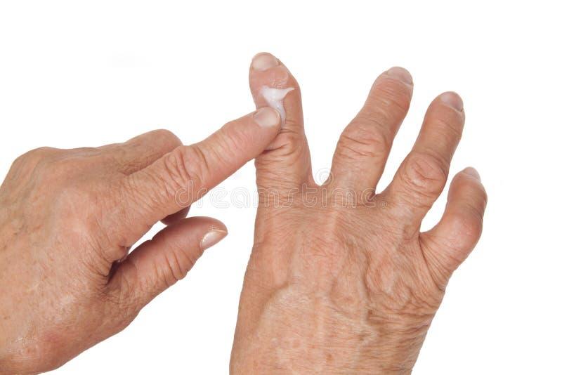 Rheumatoid αρθρίτιδα των δάχτυλων. Χρησιμοποίηση της ιατρικής κρέμας στοκ φωτογραφίες