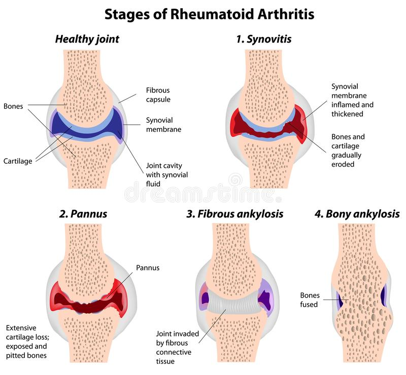 Rheumatoid arthritis vector illustration