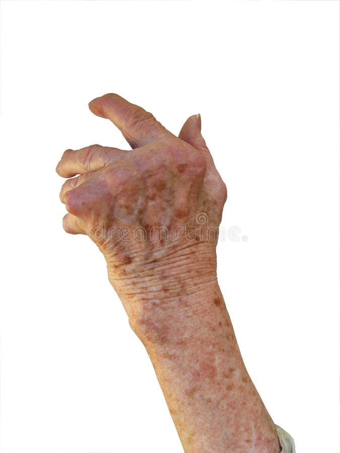 Rheumatoid Arthritis Stock Photography