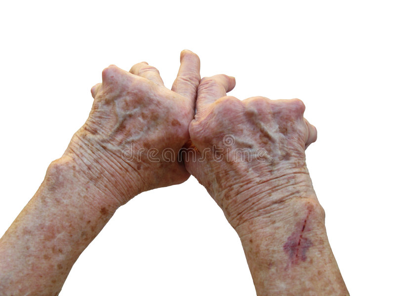 Download Rheumatoid Arthritis stock image. Image of medicine, arthritis - 6041597