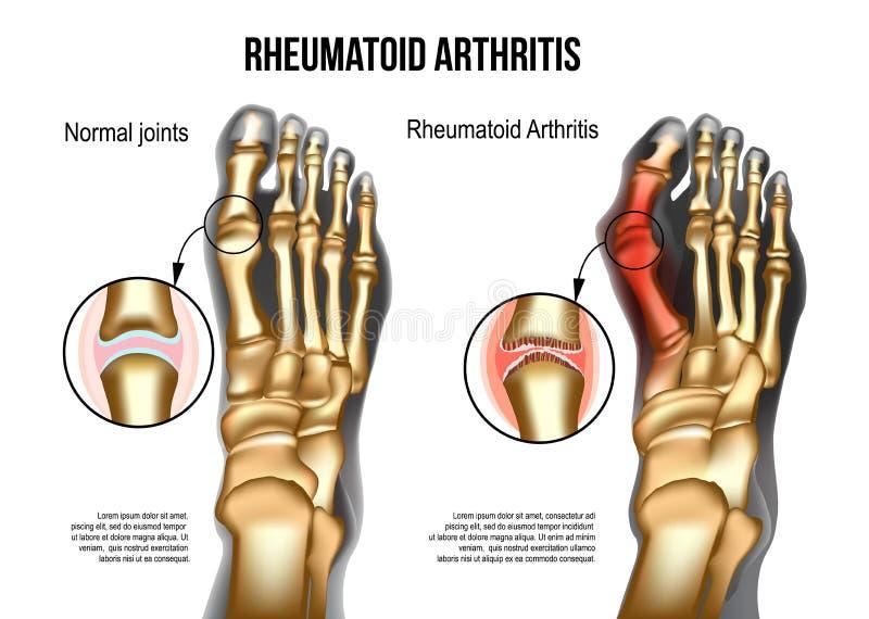 Rheumatoid arthritis Bones the of foot. Realistic skeleton of human leg with bones of foot normal and rheumatoid artritic sore joints, top view. For rheumatoid royalty free illustration